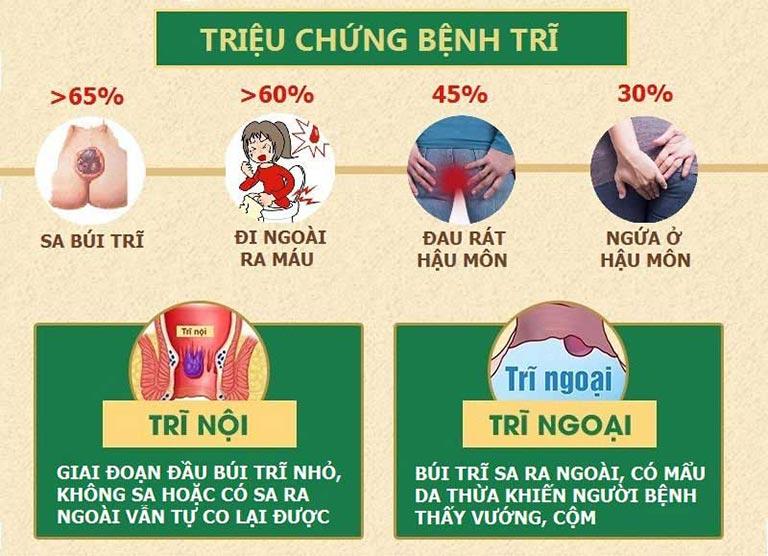 Các triệu chứng chính của Bệnh Trĩ và Phương pháp PT - Bệnh viện Trĩ Tâm An